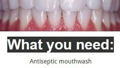How To Whiten Yellow Teeth and Remove Plague and Tartar Buildup