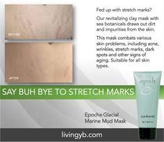 Our Glacial Marine Mud Mask helps diminish stretch marks! Stretch Mark Cream, Stretch Marks, Marine Mud Mask, Glacial Marine Mud, Skin Cleanse, Skin Problems, Anti Aging Skin Care, Face And Body, Lip Colors