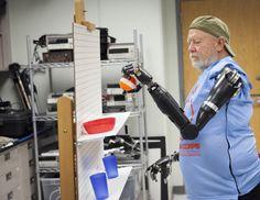 Le premier Américain équipé de deux bras bioniques