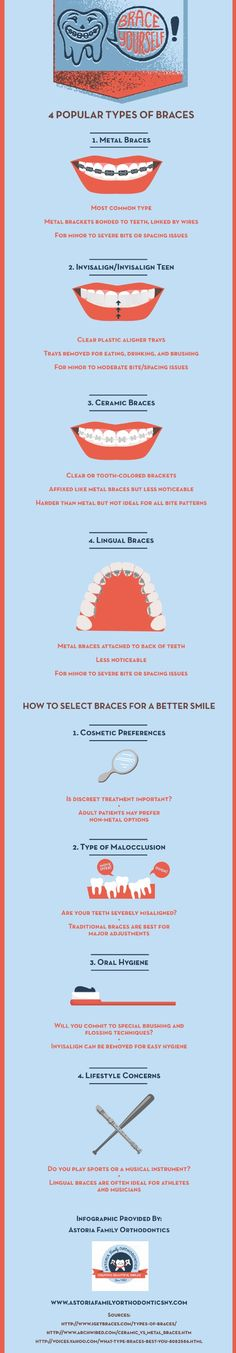 The Invisalign system provides clear plastic aligner trays that can be removed for eating, drinking, and brushing. Take a look at this infographic from an orthodontist in Astoria for more facts about popular types of braces.