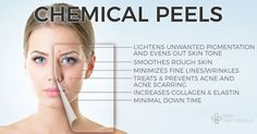 How can chemical peels benefit you? Learn more at: