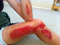 Sooner or later everyone will experience road rash, it's a part of cycling, How you first handle your wounds will make all the difference in the amount of time it takes to recover.