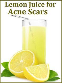 best acne scar remedies