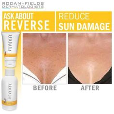 Rodan and Fields REVERSE Regimen. Take the first step to getting the skin you've always wanted. www.jaclynward.myrandf.com #brownspots #skincare #rodan #skin #freckles #sun