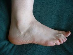 How To Cure Numb Feet Naturally