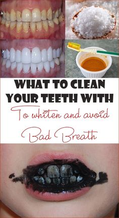 What to clean your teeth with to whiten and avoid bad breath - Simple Tips for Y. - What to clean your teeth with to whiten and avoid bad breath – Simple Tips for You - Teeth Whitening Remedies, Natural Teeth Whitening, Whitening Kit, Causes Of Mouth Ulcers, What Causes Tooth Decay, Receding Gums, Budget Planer, Best Oral, Bad Breath