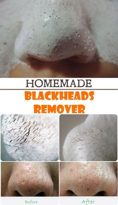 How can we get rid of blackheads, naturally?