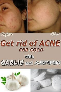 Get rid of Acne FOR GOOD with Garlic and Aspirin