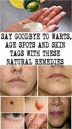 Simple methods to Get rid of Warts Naturally #NaturalHairProducts #BestWayToRemoveWartsOnFeet #HowToRemoveWartsOnFace #RemoveWarts #EasyWayToRemoveWarts #WartsOnHands Black Spots On Face, Brown Spots On Skin, Skin Spots, Dark Spots, Brown Skin, Warts On Hands, Warts On Face, How Do You Remove, How To Get Rid
