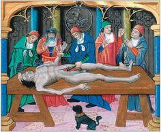 Scène de dissection à la Renaissance