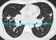 11. その他の肺疾患 症例097:サルコイドーシス CT,『コンパクトX線アトラスBasic 胸部単純X線写真アトラス vol.1 肺』 Radiology