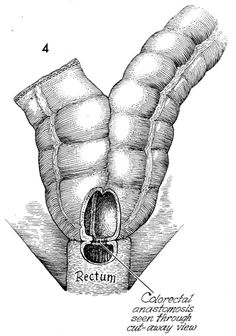 "Colonic ""j"" Pouch Rectal Reservoir"