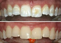 Before and After photos of white spots on teeth after braces fixed with dental bonding. Teeth After Braces, Braces Before And After, Teeth Bonding, Dental Bonding, Dental Teeth, Dental Care, Dental Photos, Family Dentistry