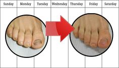 How To Get Rid Of Bad Toenail Fungus Toenail fungus can be easily treated at home without a visit to the doctor.  Check out this list of toenail fungus home remedies that actually work. How to get rid of a bad toenail fungus infection. Medical treatments,  topical anti-fungal medications as well as home remedies to treat a toenail  fungal infection.Visit for full review  of Fungus Terminator System https://fungusterminator.wordpress.com