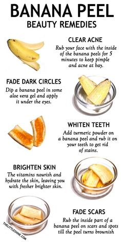 Bananas are loaded with nutrients, vitamins, and antioxidants that make it a popular fruit to include in your daily diet. Beauty Tips For Glowing Skin, Health And Beauty Tips, Face Skin Care, Diy Skin Care, Skin Care Remedies, Natural Remedies, Banana Peel Uses, Banana Peels, Aloe Vera