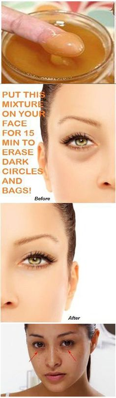 There are many people with dark heavy bags under their eyes that even all the concealers in the world won't hide. Maybe you're one of them. Some women suffer routinely from dark under-eye circles w…