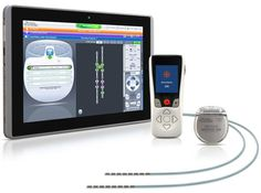 Boston Sci's Precision Montage MRI Spinal CordStimulator Unveiled in U.S.