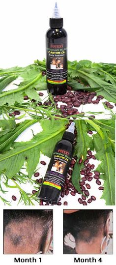 Traction Alopecia Rejuvenate Potent Jamaican Black Castor Oil for Traction Alopecia from $53.74