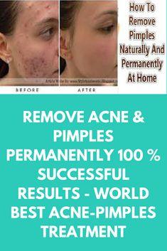 Wie werde ich Pimples über Nacht loswerden