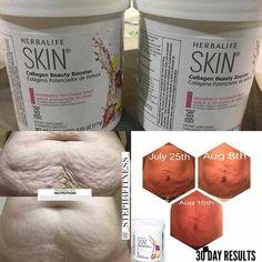 Cheap Wine Making Kit #WineMakingEquipmentCommercial #SkinTighteningCelluliteTreatment
