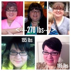 Five months post op RNY gastric bypass. Before and after down 75 lbs so far!!