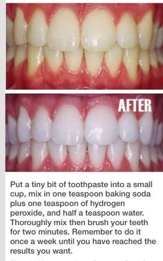 a tiny bit of toothpaste mixed with 1 teaspoon baking soda plus of hydrogen peroxide and half a teaspoon water to brush teeth whiter. Once your teeth are good and white, limit yourself to using the whitening treatment once every month or two. Beauty Secrets, Diy Beauty, Beauty Hacks, Fashion Beauty, Beauty Bay, Beauty Advice, Homemade Beauty, Beauty Ideas, Health And Beauty Tips