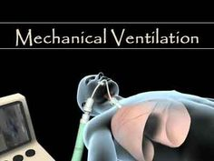 The American College of Chest Physicians (CHEST) and the ATS have published new guidelines for discontinuing mechanical ventilation in critically ill adults.