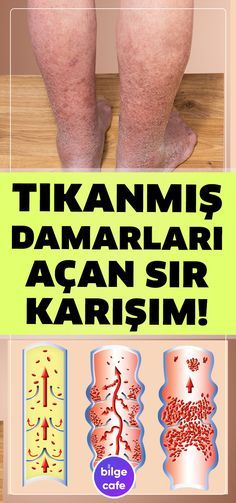 Damarlarınızı Tertemiz Yapacak Sır Tarif – Health and Wellness Health And Wellness, Health Tips, Health Care, Health Fitness, Holistic Wellness, Natural Home Remedies, Herbal Remedies, Health Remedies, Health Center