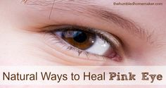 Don't spent money on doctor's visits or prescription antibiotic drops! Check out these natural ways to heal pink eye! These really work to heal pink eye!