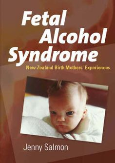 """preventing fetal alcohol spectrum disorders in new zealand 3000 new zealand children born with fasd each year """"leading  preventing fasd:  a noted international speaker on fetal alcohol spectrum disorders."""