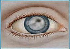 Как мы боролись с катарактой | Друг пенсионера