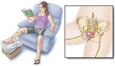 Percutaneous Tibial Nerve Stimuation (PTNS) is a low-risk, non-surgical treatment for people with overactive bladder (OAB). Bladder Prolapse, Urinary Incontinence, Cystitis, Princess Zelda, Disney Princess, Menopause, Physical Therapy, Aurora Sleeping Beauty, Female