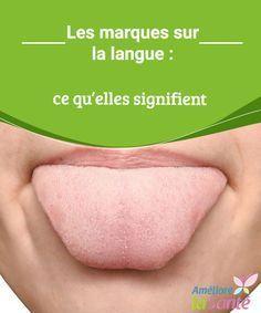 Les marques sur la langue : ce qu'elles signifient Le saviez-vous ? Les marques sur la langue ont une signification et permettent de découvrir plusieurs affections !