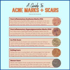 Pure Beauty, Beauty Skin, Health And Beauty, Acne Reasons, Acne Marks, Beauty Tips For Women, Pitta, Anti Aging Tips, Flawless Skin