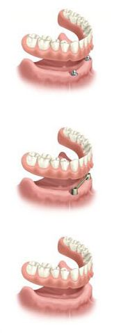 Hoffman Smiles welcomes new patients looking for general dentistry, family dentistry, restorative dentistry, cosmetic and emergency dentistry. When you need a dentist in Hoffman Estates, call us. Restorative Dentistry, Family Dentistry, Dental Implants, Bridge, Bridges, Legs, Attic Rooms, Bro
