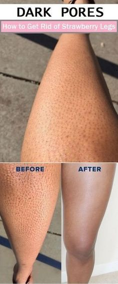 to Get Rid of Strawberry Legs Dark pores on the legs are one of the weird things for women.Dark pores on the legs are one of the weird things for women. Beauty Care, Beauty Skin, Health And Beauty, Healthy Beauty, Piel Natural, Natural Skin, Natural Beauty, Skin Tips, Skin Care Tips