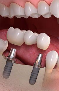 dental implants Maryland MD