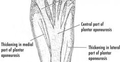 How Can Plantar fasciitis Be Helped? Metro Physio www.metrophysio.co.uk
