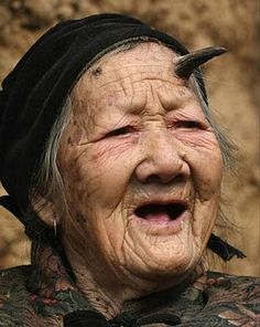Bizarre facts-Chinese woman with horn. Yikes!