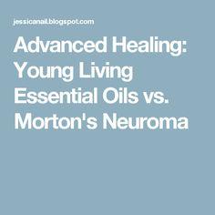 Advanced Healing: Young Living Essential Oils vs. Morton's Neuroma Neuroma De Morton, Mortons Neuroma Treatment, Essential Oils 101, Essential Oil Blends, Yl Oils, Doterra Oils, Morton's Neuroma, Young Living Oils, Young Living Essential Oils