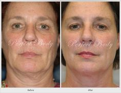 Thermage™ non-surgical, cosmetic skin tightening and volume reduction: Thermage™ (non-surgical tummy-tuck, face lift, eye-lift). Thermage™ is a safe, clinically proven way to tighten and contour skin, with improvements in tone, contour, and texture. Thermage™ is the only non-invasive procedure available that tightens and renews your skin's collagen in all three layers leaving beautiful results.