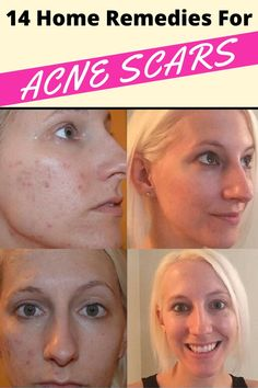 natural skin and body care Home Remedies For Pimples, Home Remedies For Acne, Acne Remedies, Natural Sleep Remedies, Natural Cures, Natural Beauty, Acne Reasons, Cough Remedies