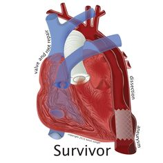 There are a few documented cases of spontaneous dissection healing. Surviving Post-Dissection Life But the maxim still h. Nurse Practitioner Education, Aortic Dissection, Marfan Syndrome, Aortic Aneurysm, Surgery Recovery, Heart Conditions, Cardiovascular Health, Med School, Heart Health