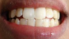 Crowns for teeth