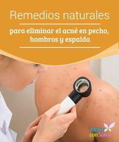 Remedios naturales para eliminar el acné en pecho, hombros y espalda La higiene y la exfoliación son fundamentales para limpiar la zona y evitar la acumulación de células muertas y suciedad. Así evitamos que los poros se taponen