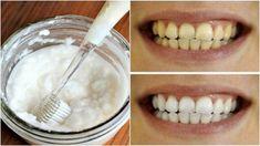 Osvojte si metódu čistenia zubov, ktorá vás zbaví nepríjemného zápachu, odstráni povlak a ochráni vaše zuby pred kazmi. Ako bonus čakajte viditeľne belšie zuby!