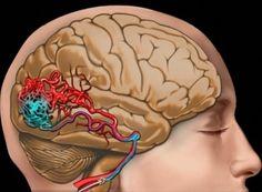 Príčiny, príznaky a liečba zúženie krvných ciev v mozgu / Byť zdravý