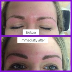 2 new sets of brows done today , don't forget there only £50 off throughout November and I only have a few slots left, I can't do any more days after these are full.. Please message for details