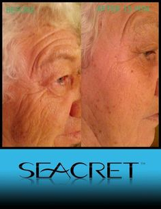 Seacret - Facial & Skin Care Products Real Results in just 15 minutes! www.seacretdirect.com/jacklynndon