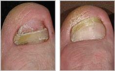 Dlaczego grzybica stóp jest tak trudna do wyleczenia? Persona, Maya, Health, Allergies, Lose Belly Fat, Health Remedies, Health Care, Maya Civilization, Salud